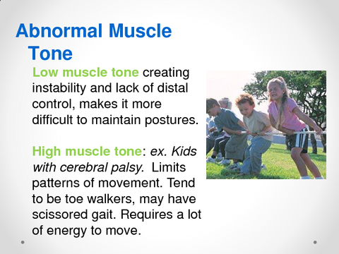 Abnormal Muscle Tone